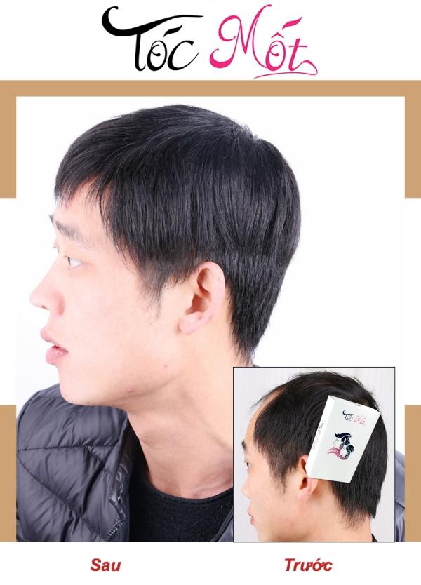 Tóc Kẹp Mái Cho Nam